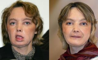 La primera paciente con un rostro trasplantado  [PERFIL]