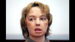 Murió la mujer que recibió el primer trasplante de cara