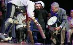 Un 'hombre cabra' entre los ganadores de los Premios anti-Nobel
