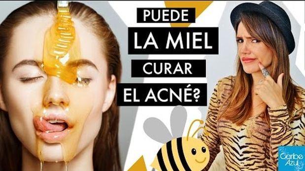 Mitos y verdades sobre la miel como solución contra el acné