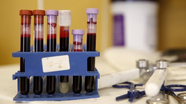 Sida: Brasil refuerza lucha con un nuevo medicamento