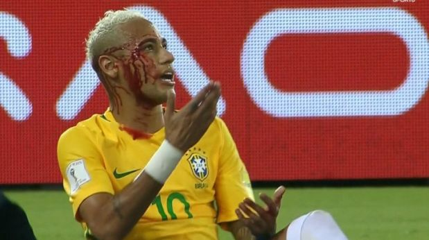 Neymar: así terminó el crack tras golpe de boliviano [Foto: Twitter]