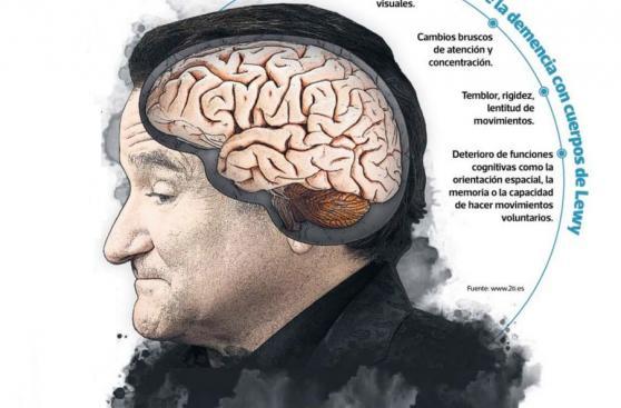 Robin Williams: ¿En qué consiste la enfermedad que lo mató?