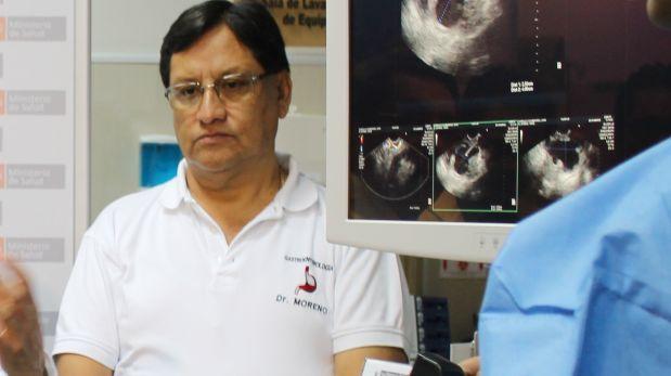 Caso Moreno: Fiscalía amplía investigación e incluye a 4 más