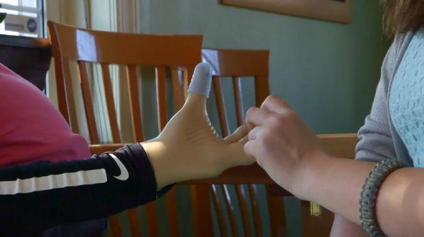Consiguen que prótesis transmita sensación de tacto