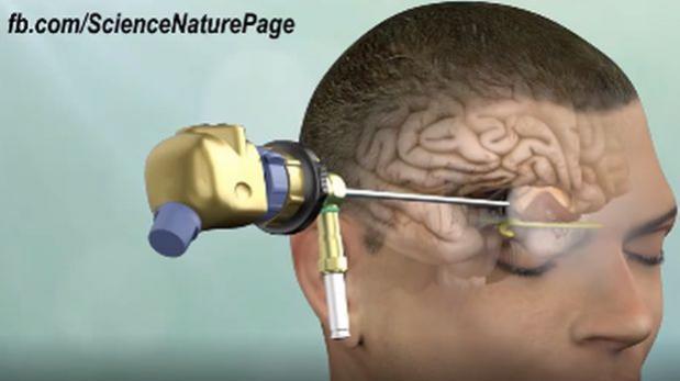 Facebook: muestran nuevo método para extirpar tumor cerebral