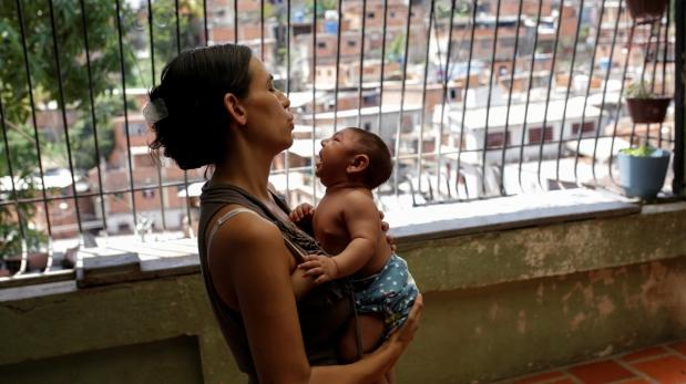Zika: podrían confirmar mil casos más de microcefalia en Brasil