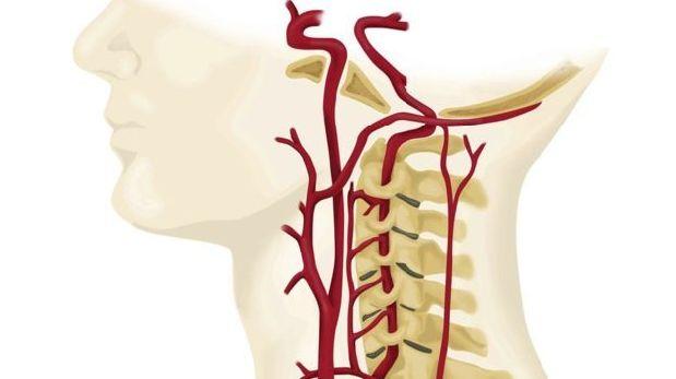 El cuello es una zona muy delicada por donde pasan arterias que conectan el cerebro con el cuerpo. (Foto: SCIENCE PHOTO LIBRARY)
