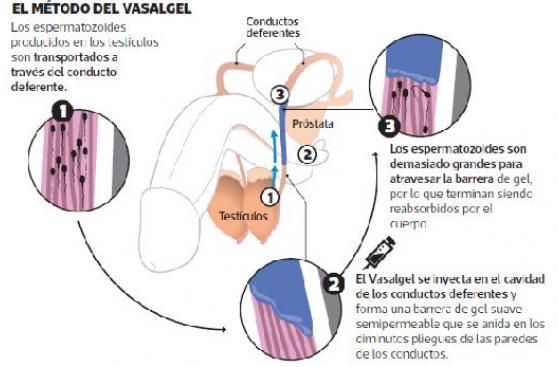 Un gel inyectable podría reemplazar a la vasectomía