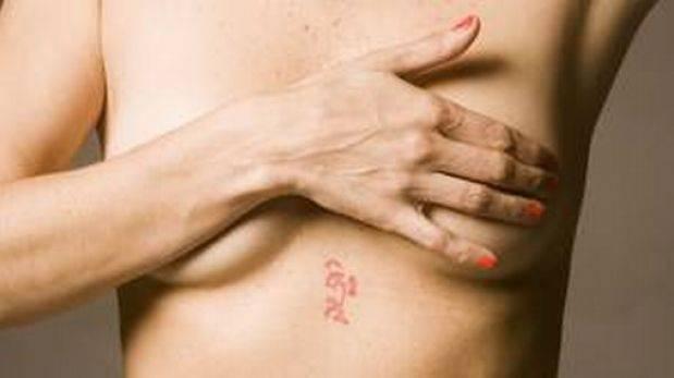 Test evita quimioterapia al 40% mujeres con cáncer de mama