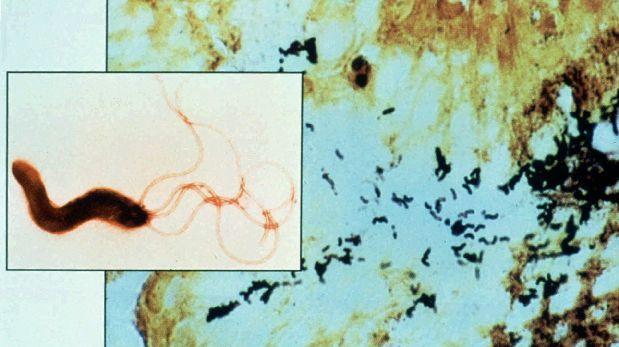 La OMS publica lista de las superbacterias más peligrosas