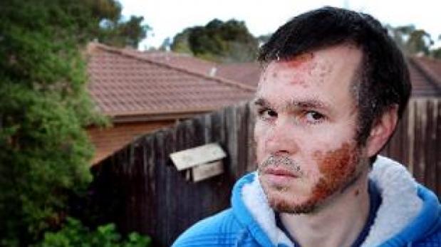 Los hombres víctimas de ataques con ácido en Colombia [BBC]