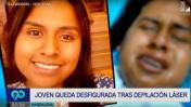 Magdalena: una joven quedó desfigurada tras depilación láser