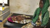Las imágenes de la hambruna, el cólera y la sequía en Somalia