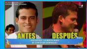 Christian Domínguez se operó la nariz y ahora luce así [VIDEO]
