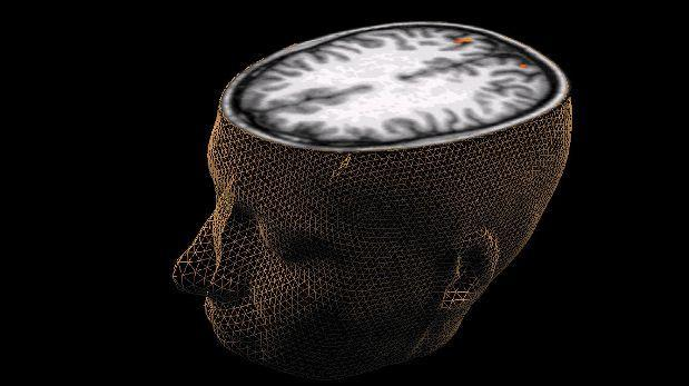 Trece alteraciones genéticas aumentan riesgo de cáncer cerebral