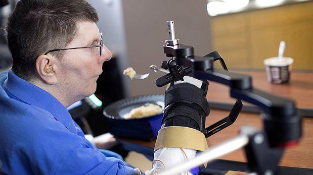 Neuroprótesis hizo posible que recobre uso de su brazo y mano