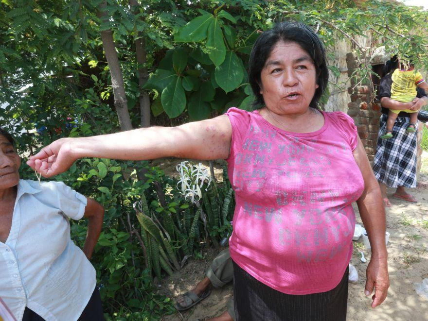Valentina Yovera ha sufrido llagas y escoriaciones en la piel. El agua que los rodea está sucia y contaminada. (Foto: Lino Chipana / El Comercio)