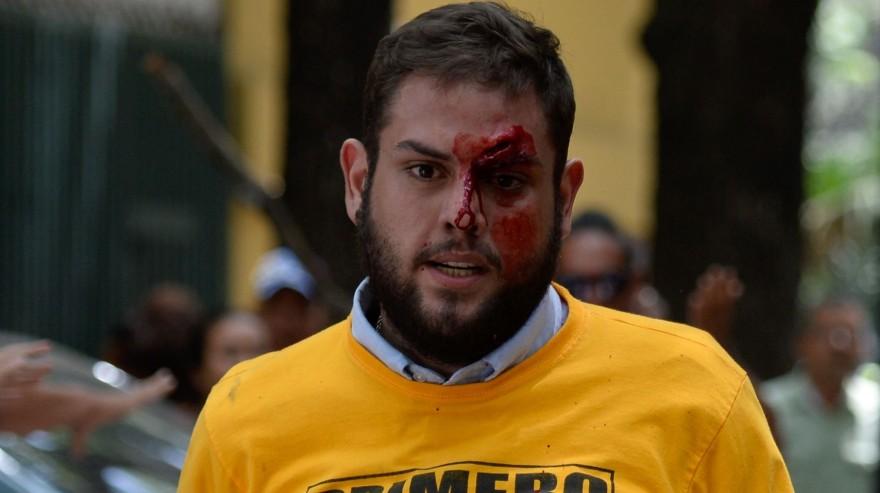 Venezuela. Juan Requesens quedó desfigurado durante una protesta. (AFP)