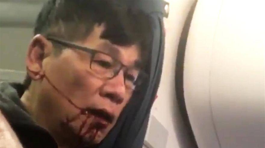Escorpión pica a pasajero durante vuelo de United