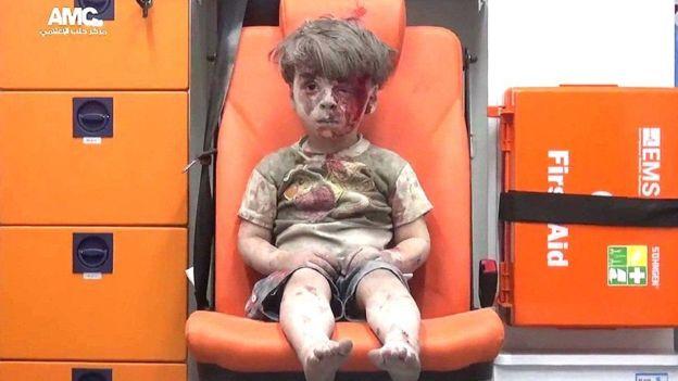 Lejos de los suburbios de Damasco donde viven Bashar, Asma y sus tres hijos, el pequeño Omran Daqneesh sobrevivió hace unos meses a un ataque aéreo contra un barrio opositor. (Foto: Alepo Media Center)