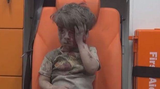 ¿Recuerdas a Omran, el niño sirio?, su tragedia aún no termina