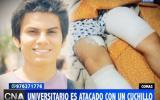 Comas: hampones atacan a cuchillazos a estudiante para robarle