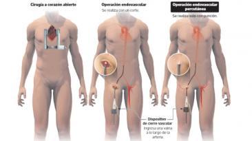 Se puede operar el corazón sin utilizar el bisturí [VIDEO]