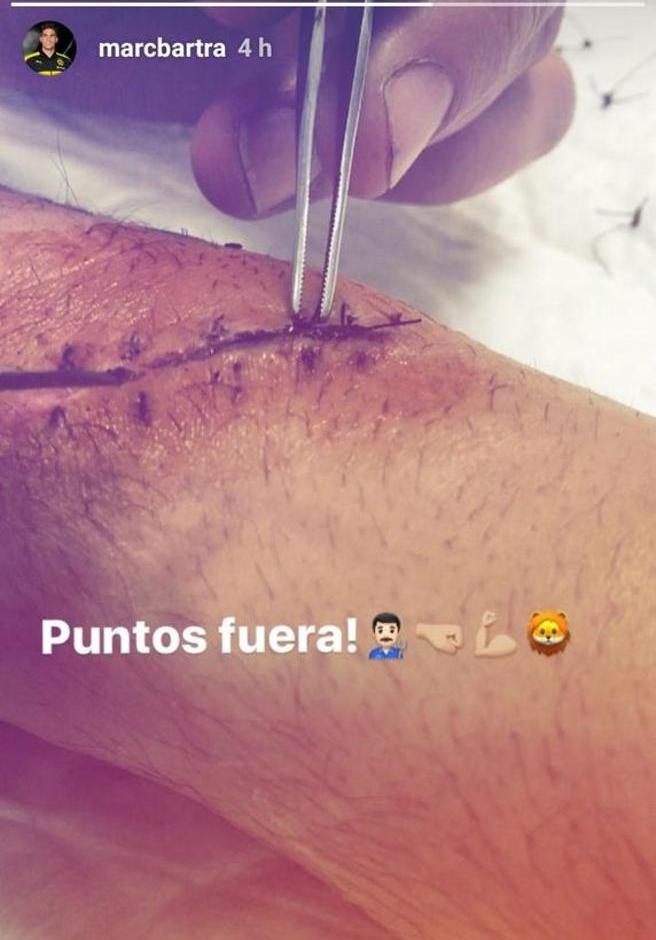 Marc Bartra publicó en Instagram su cicatriz. (Foto: Twitter)