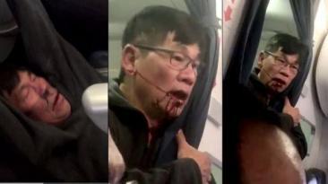 """United Airlines y pasajero expulsado firman acuerdo """"amistoso"""""""