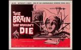 ¿Qué tan posible es realizar un trasplante de cabeza?