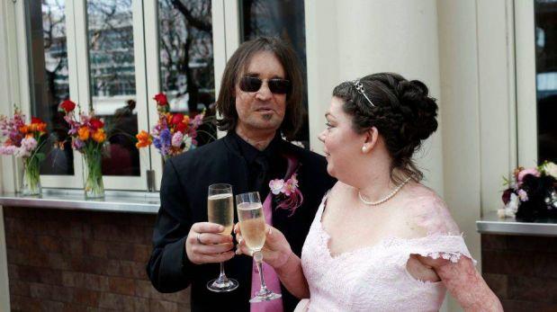 FOTOS: el matrimonio del primer paciente con trasplante de rostro en EE.UU.
