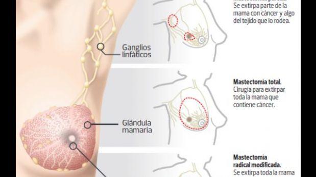 Extirpación de mamas es solo para pacientes con alto riesgo de tener cáncer