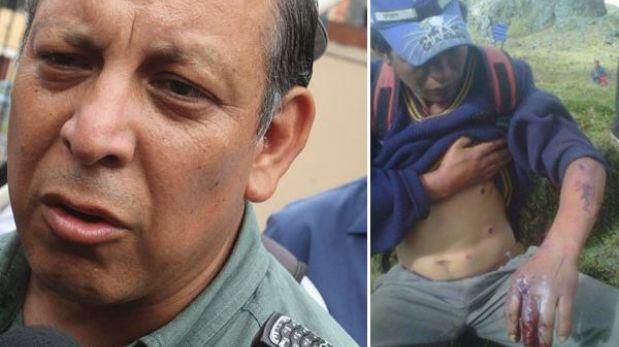 Cajamarca: un comunero resultó herido en enfrentamiento con policías