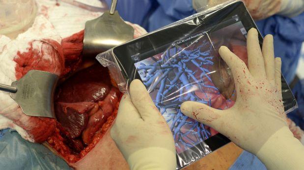 FOTOS: las tablets llegaron a las salas de operaciones y así se usan