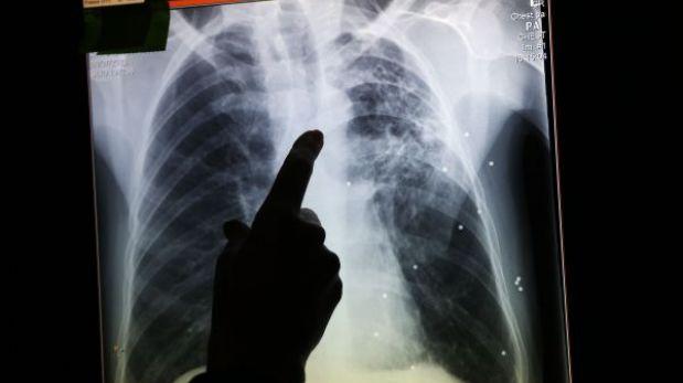 Uruguay: reo se tragó las llaves de su celda para escapar, pero rayos X lo delataron