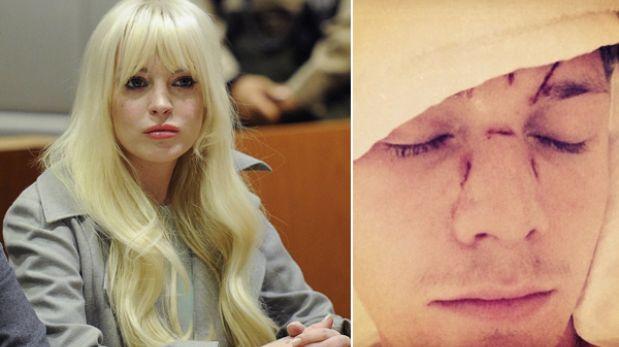 Hermano de Paris Hilton demandará a Lindsay Lohan por golpiza