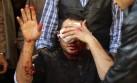 El Cairo: cinco muertos y 88 heridos por triple atentado