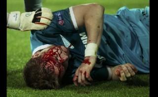 Lewandowski provocó esta terrible lesión en defensor del Zenit