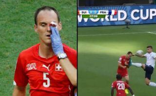 La terrible patada que obligó a jugador suizo dejar el campo