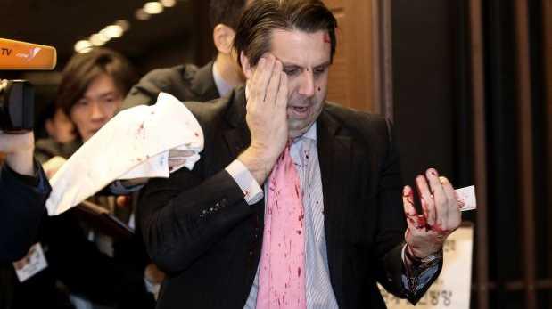 Corea del Sur: Atacan con un arma blanca al embajador de EE.UU.