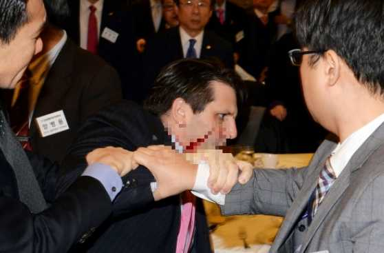 Kim Jong-un saluda terrible ataque contra embajador de EE.UU.
