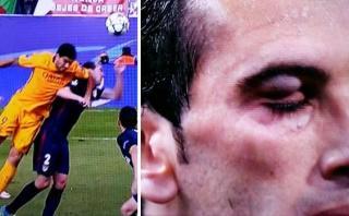 Godín: así le quedó el ojo tras agresión de Luis Suárez [VIDEO]