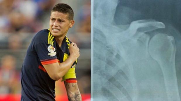 James Rodríguez: su lesión en el hombro preocupa a Colombia