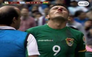 Boliviano salió lesionado por inexplicable acción de compañero