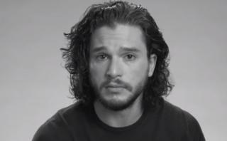"Kit Harington audicionó en ""Game of Thrones"" con un ojo morado"