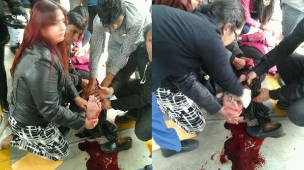 Metropolitano: mujer de 61 años sufrió accidente al abordar bus