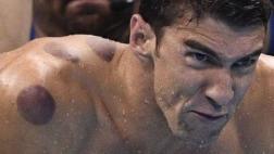 Michael Phelps: ¿por qué lleva círculos rojos en su cuerpo?