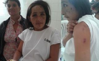 Cajamarca: ebrio quema a su pareja con 7 meses de embarazo