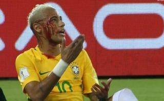 Neymar: así terminó el crack tras golpe de boliviano [VIDEO]